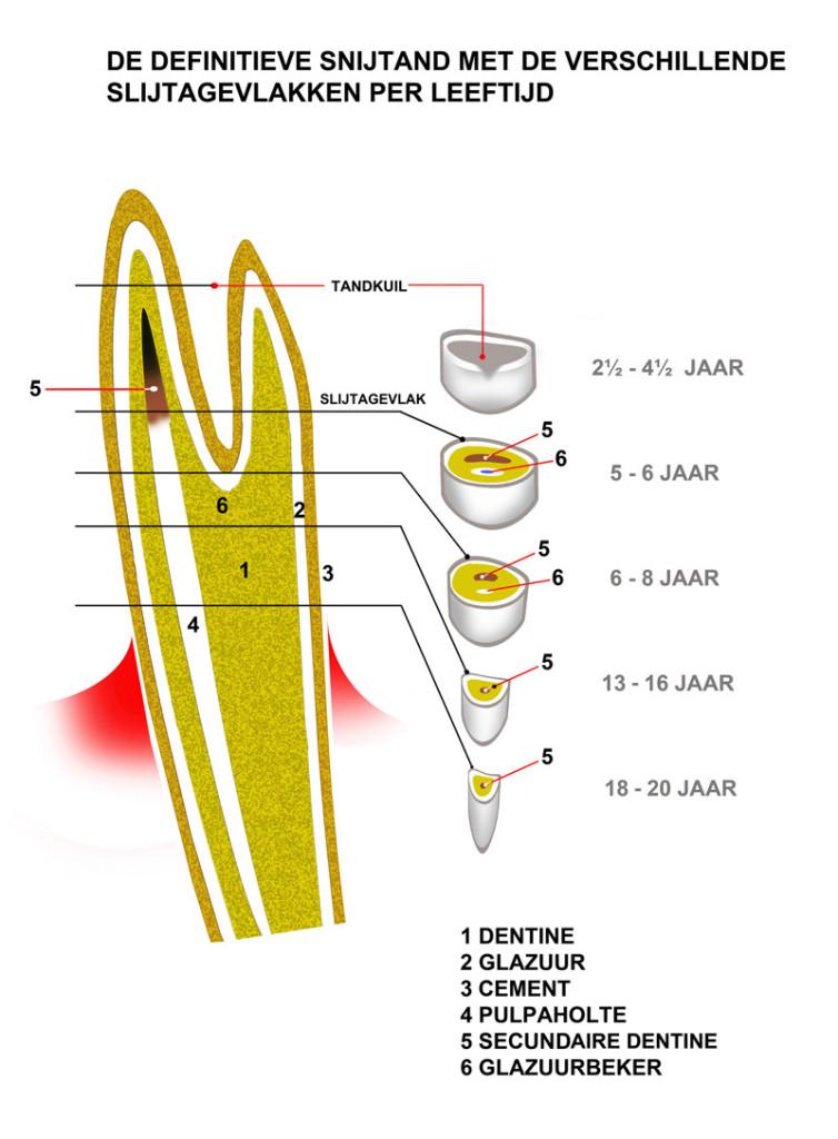 zwelling onderkaak